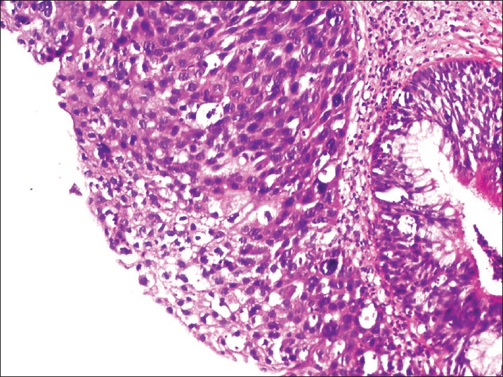 squamous papilloma with atypical