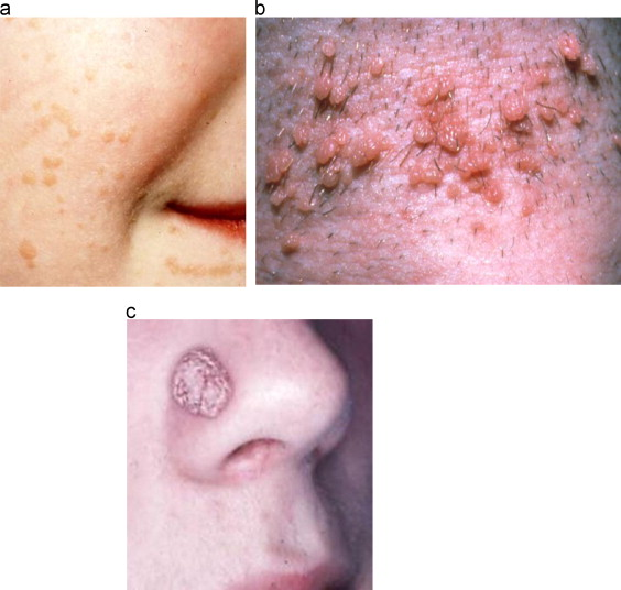 Infectia cu HPV (Human Papilloma Virus), Hpv skin conditions