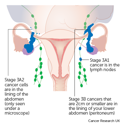cancer causing hpv types
