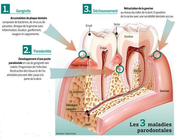 bacterie qui attaque les os