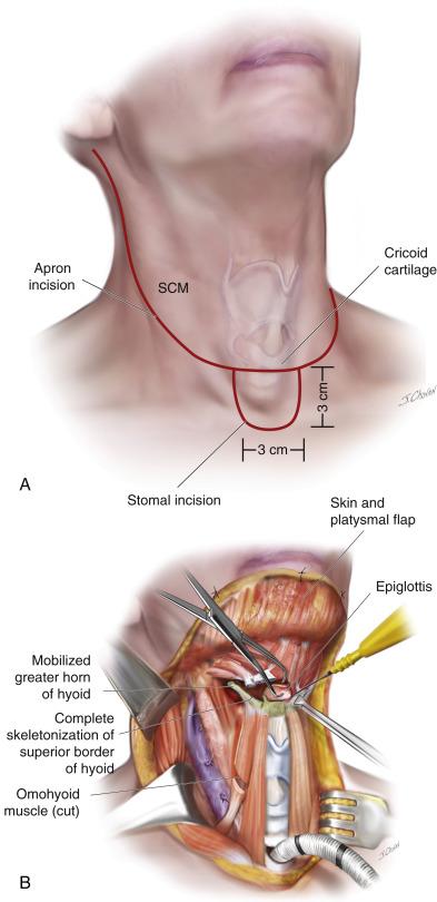 hpv cancer neck lump