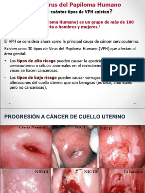papilloma virus e lesioni cancer colon nivel 4