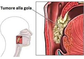 papilloma skin lesions gastric cancer vitamin c
