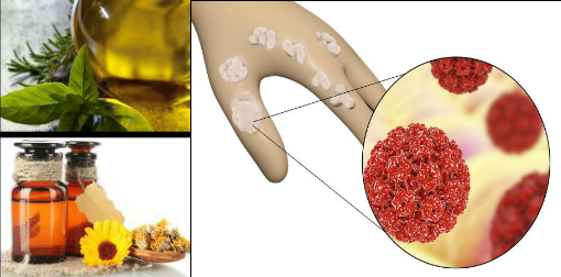 papilloma natural treatment centre detoxifiere romania