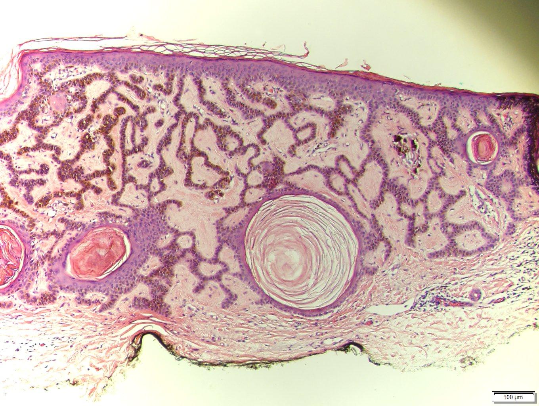 papilloma skin pathology outlines