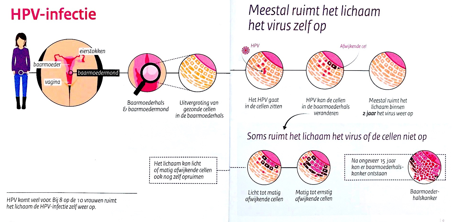 hpv virus bij vrouwen suplimente de detoxifiere cu nicotină