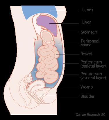 Peritoneal cancer appendix,