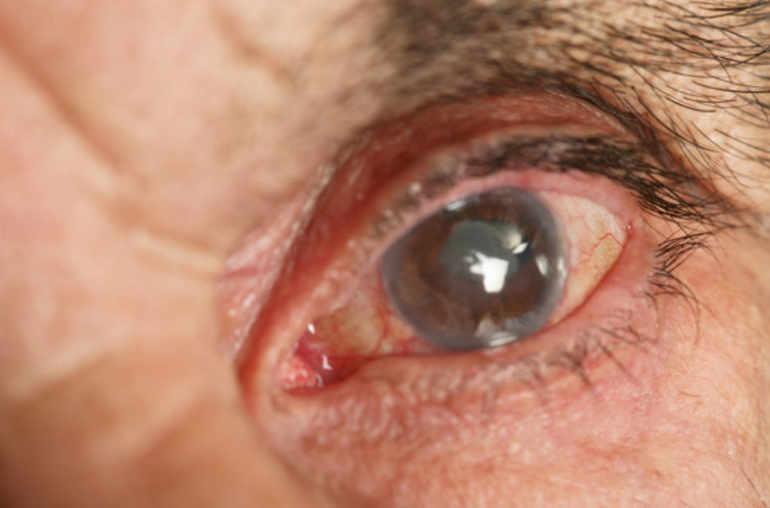 papillomavirus yeux definirea biologiei ectoparazitelor