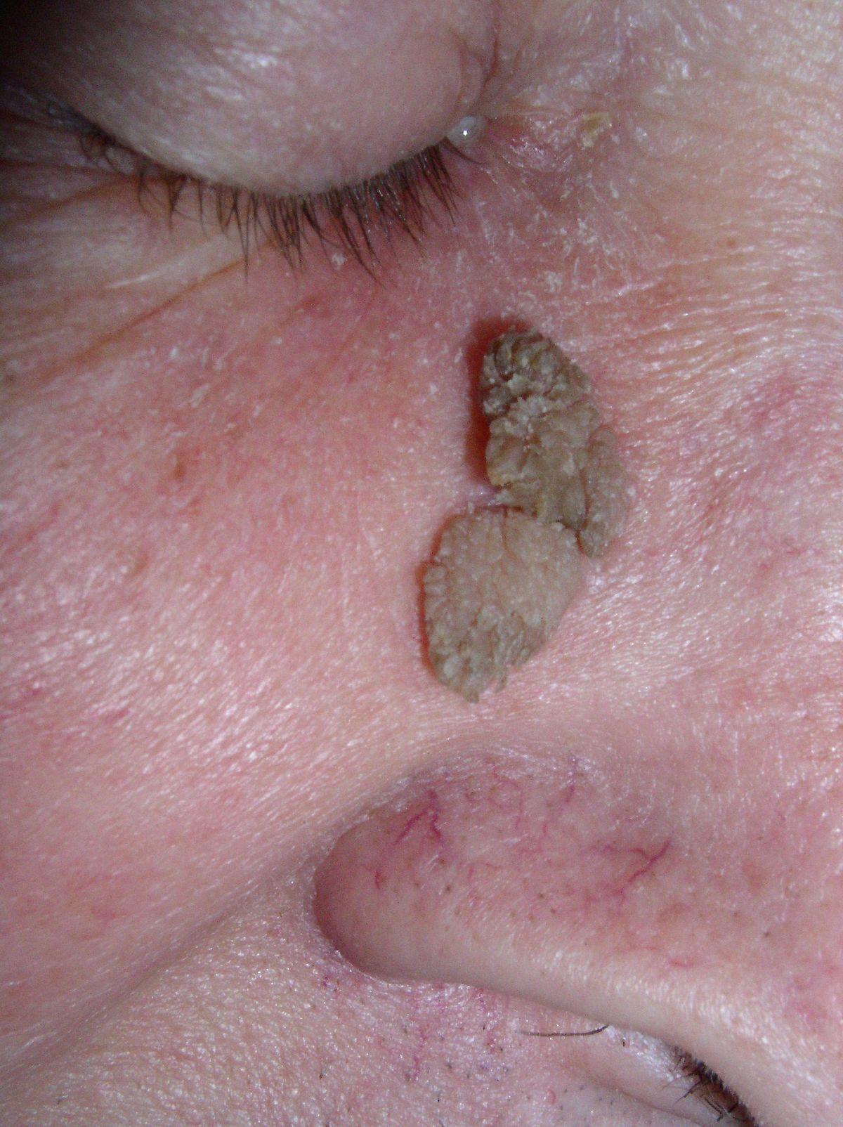 humani papiloma virus zastita viermii se numesc medicamente pentru om