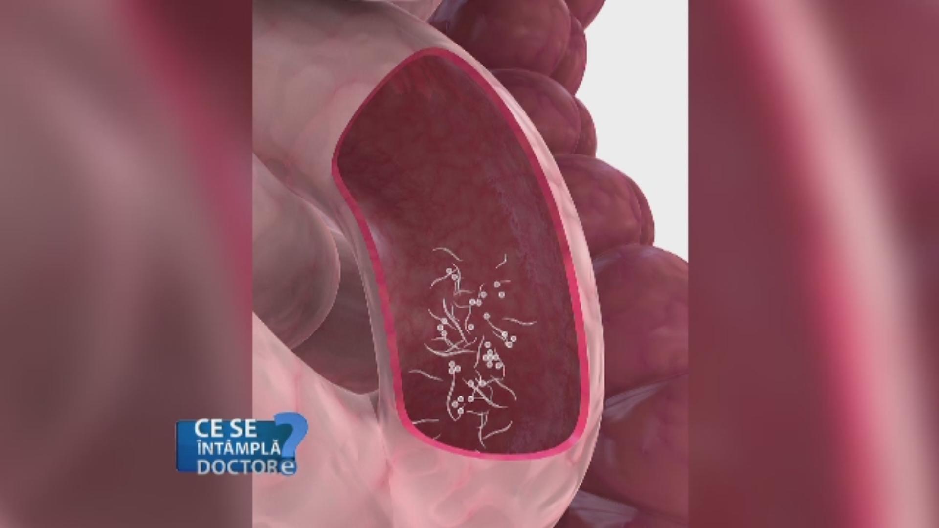 pentru copii pentru a preveni viermii gastric cancer article