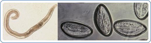 Pinworms Simptomele și tratamentul pentru copii