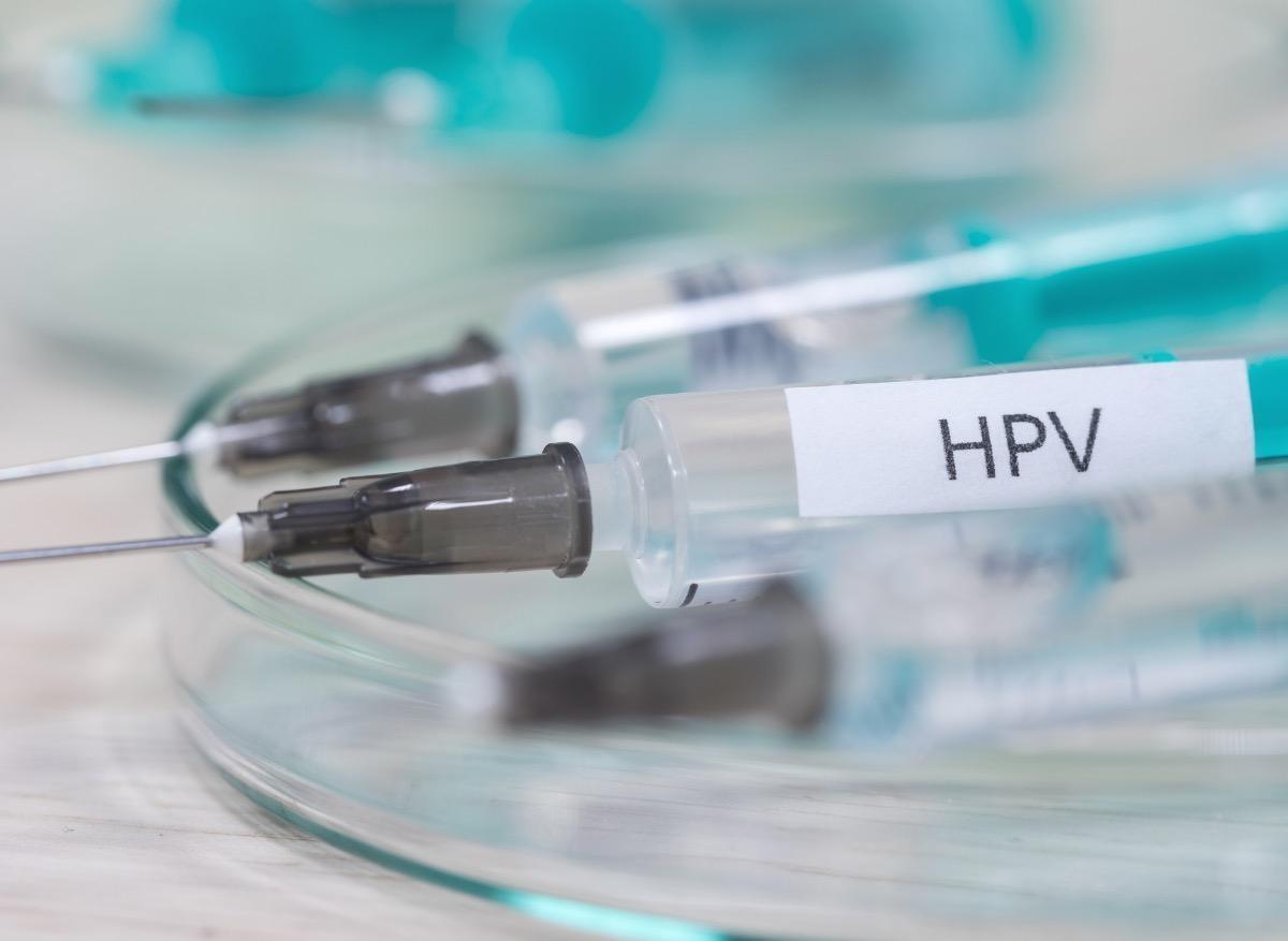 origine du papillomavirus cum să te recuperezi de la viermi