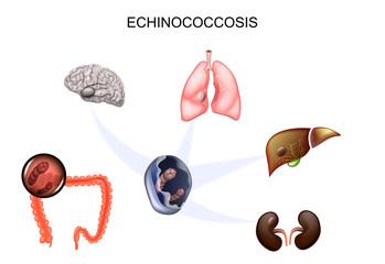 Echinococoză