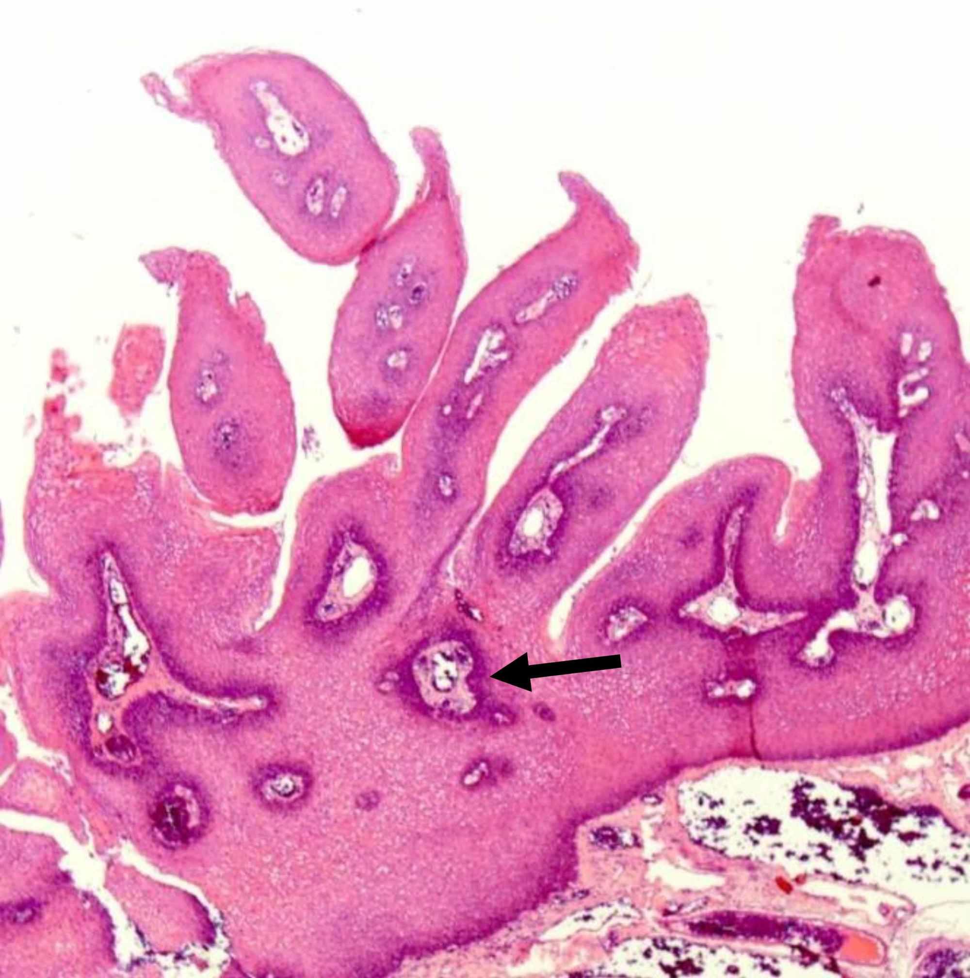 benign squamous cell papilloma