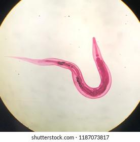 Fișier:Enterobius vermicularis (01).tif, Enterobius vermicularis worms