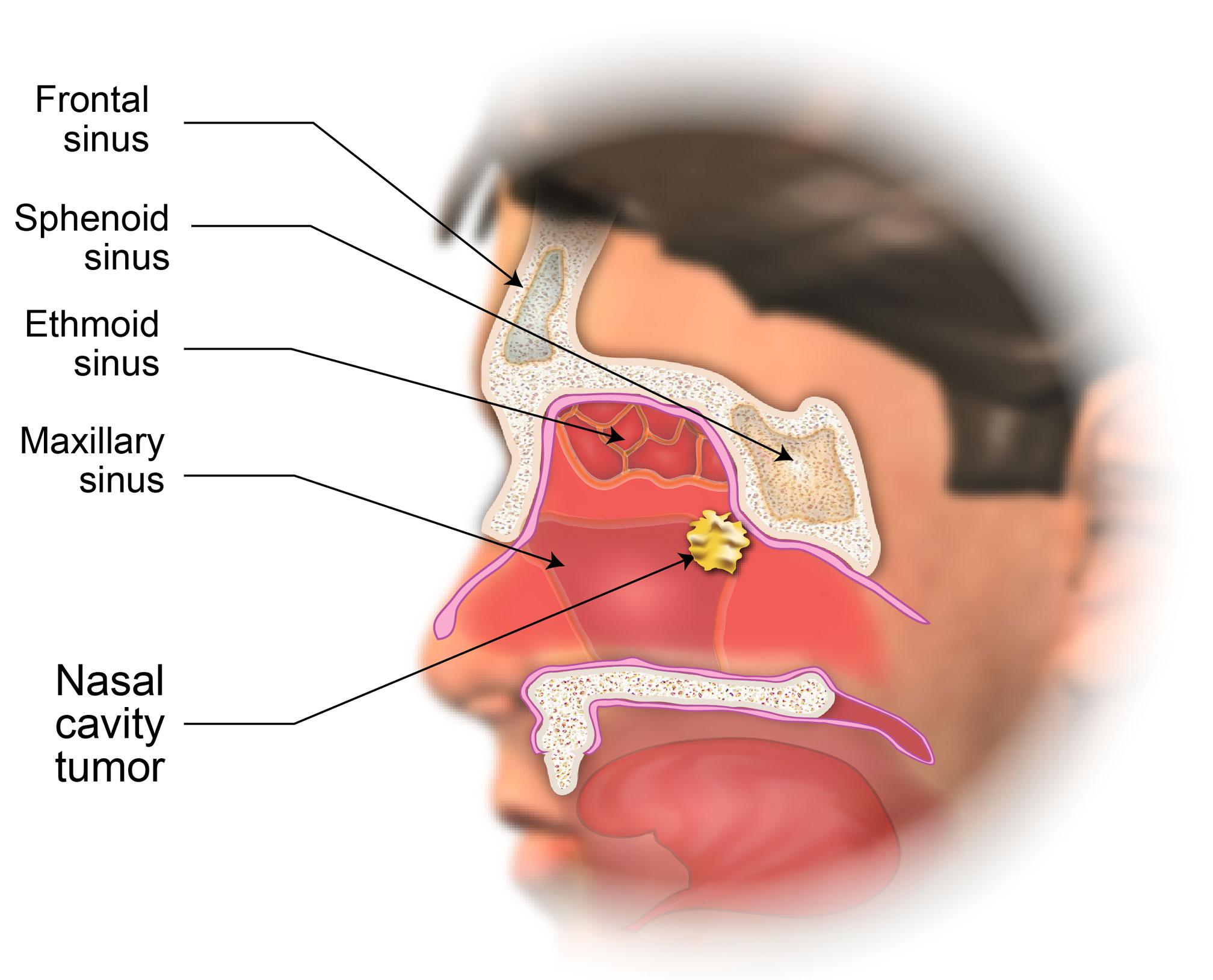 Hpv virus causes warts Hpv nasal cavity