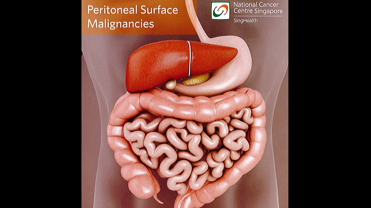 Peritoneal cancer not responding to chemo