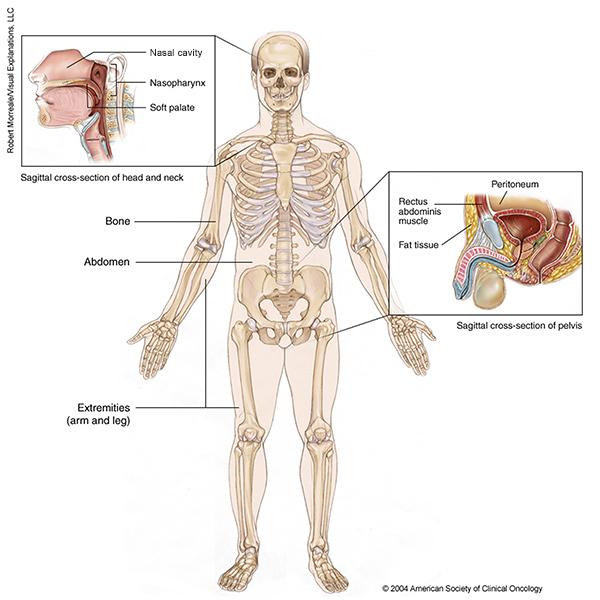 sarcoma cancer what is it cose un papilloma al seno