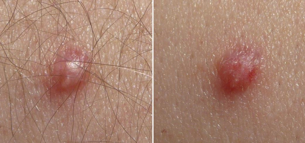 Pin on Sanatate, Hpv and skin disorders