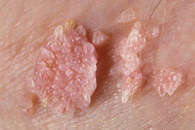 Hpv virus sintomi.
