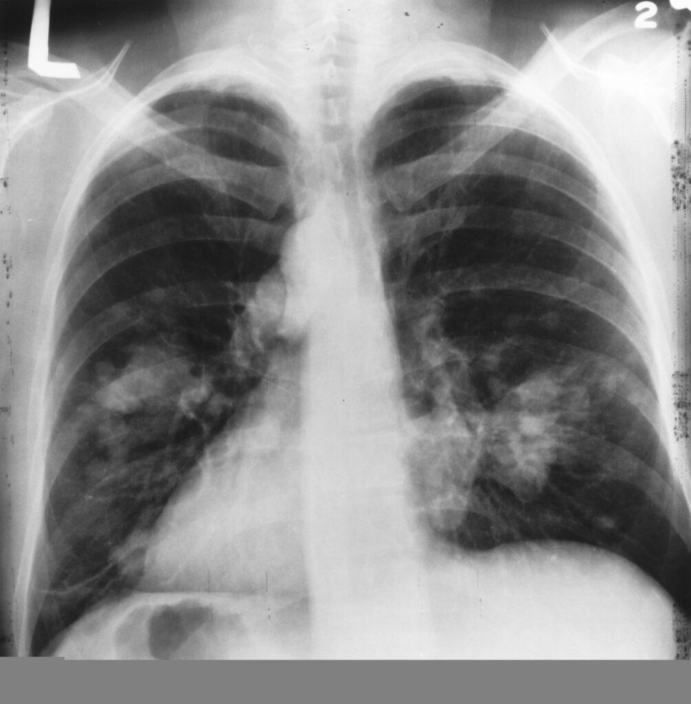 tratament pentru cancerul la plamani unii paraziți