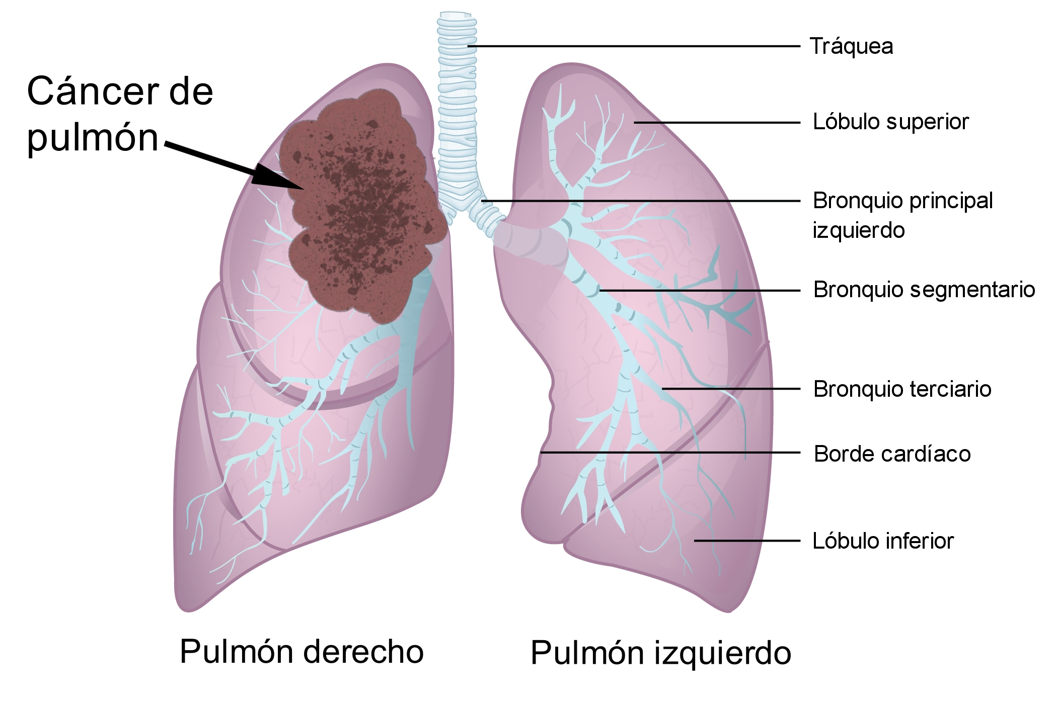 cancer colon nivel 4 paraziti externi la porci