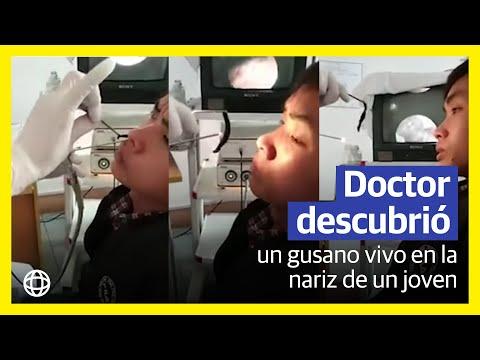 tempo incubazione papilloma virus uomo