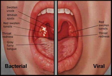 Human papillomavirus type 16 treatment - Papilloma growth on uvula