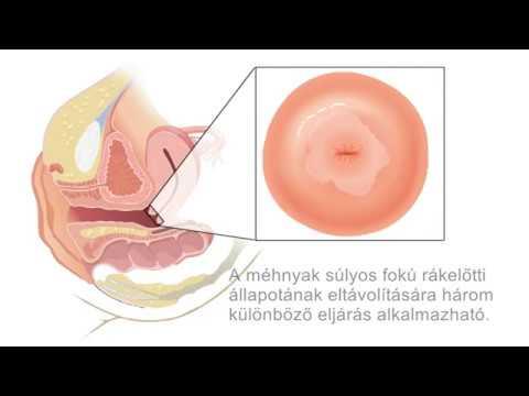 hpv virus gyogyithato