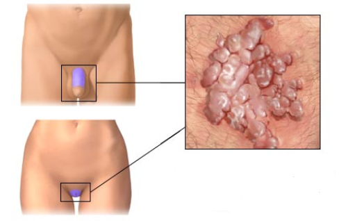 Prostata microflora cocci analni sex Hpv priznaky u muzu