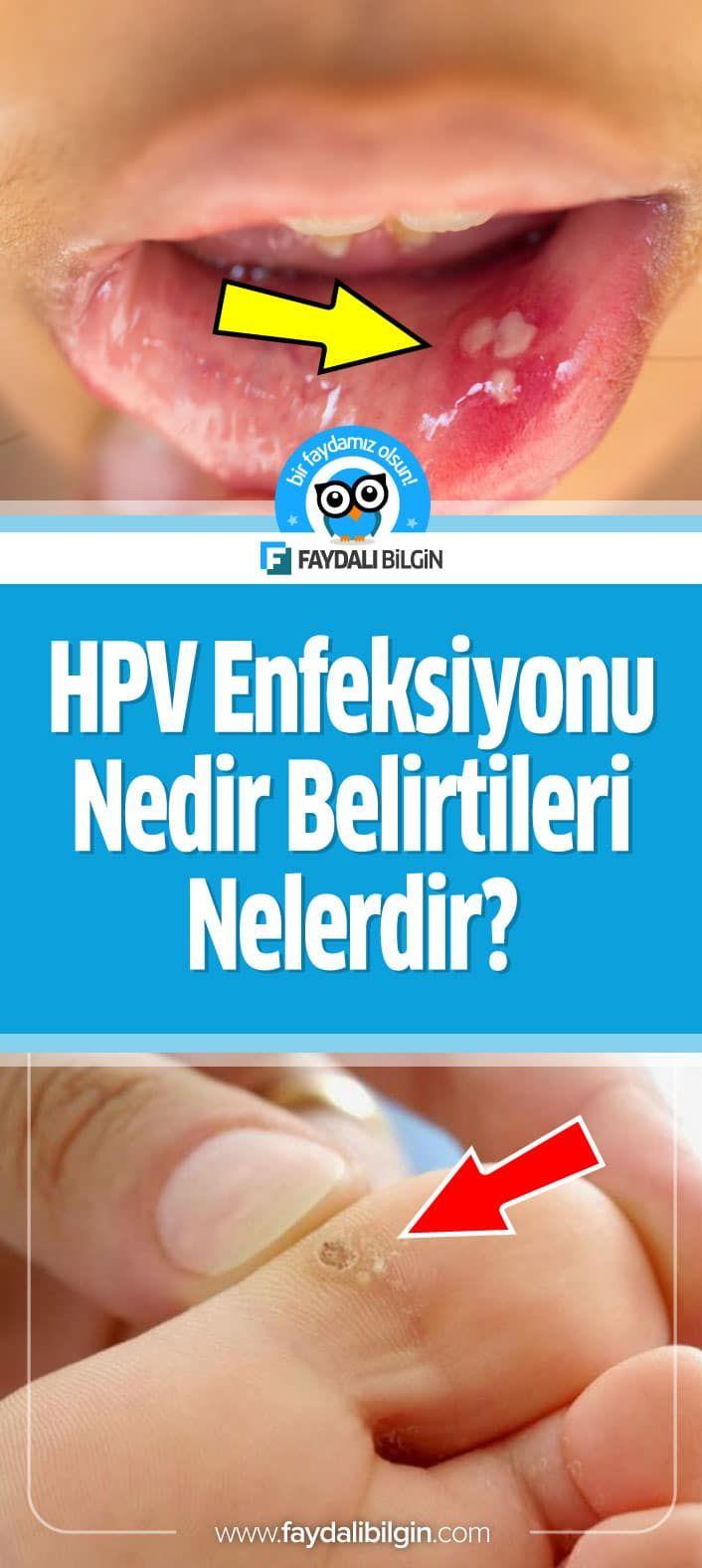 Herpesul - Zoster (Zona Zoster) Papilloma virusu tedavisi