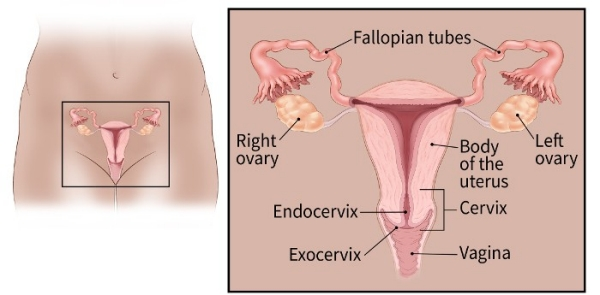 ovarian cancer is epithelial hpv que es virus