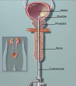 Enterobius vermicularis in urine - Urină – sediment