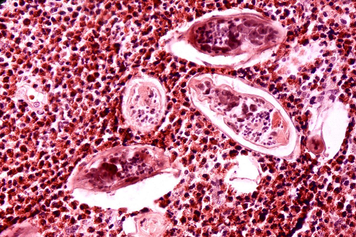 Schistosomiasis haematobium - transroute.ro