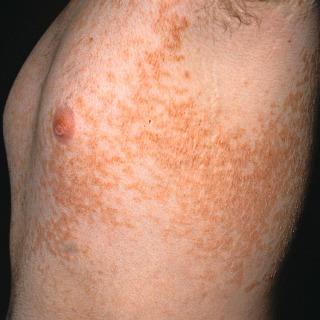 hpv symptoms warts perioada tratamentului cu paraziti