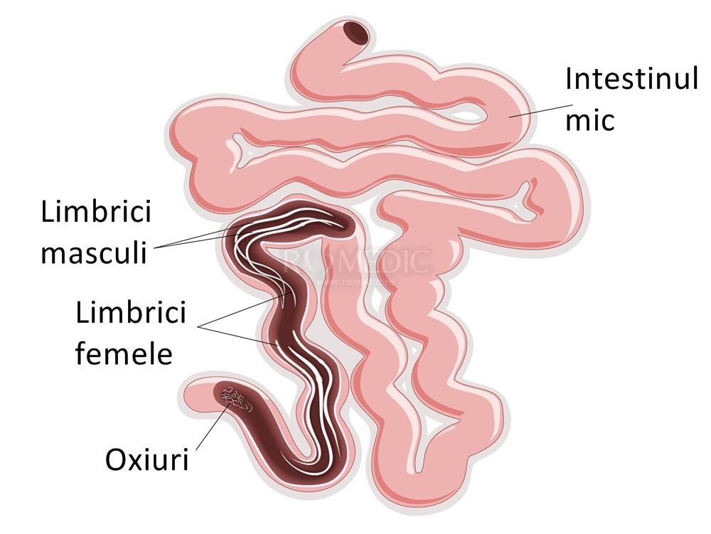 enterobioza fără simptome