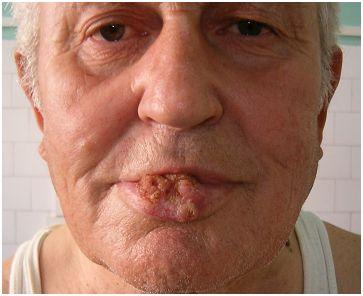 cancerul buzei inferioare