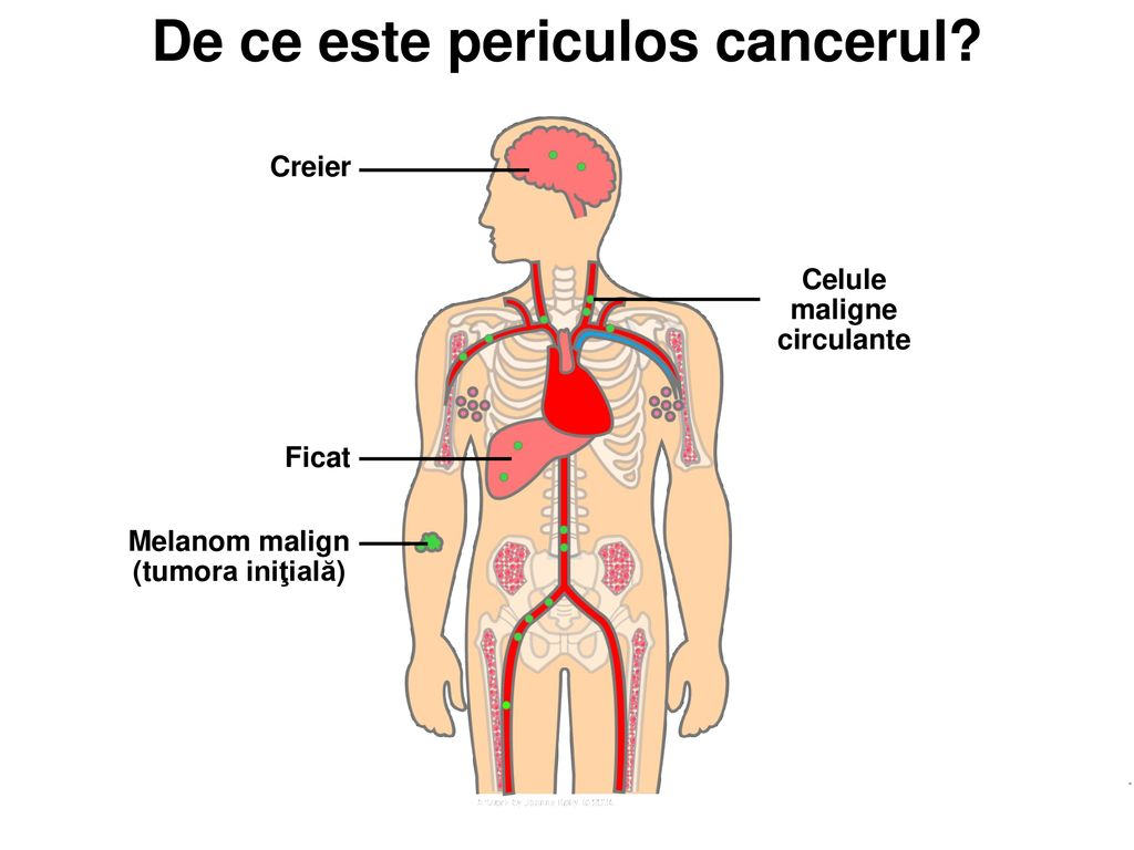 cancerul este malign sau benign contre infection papillomavirus et grossesse