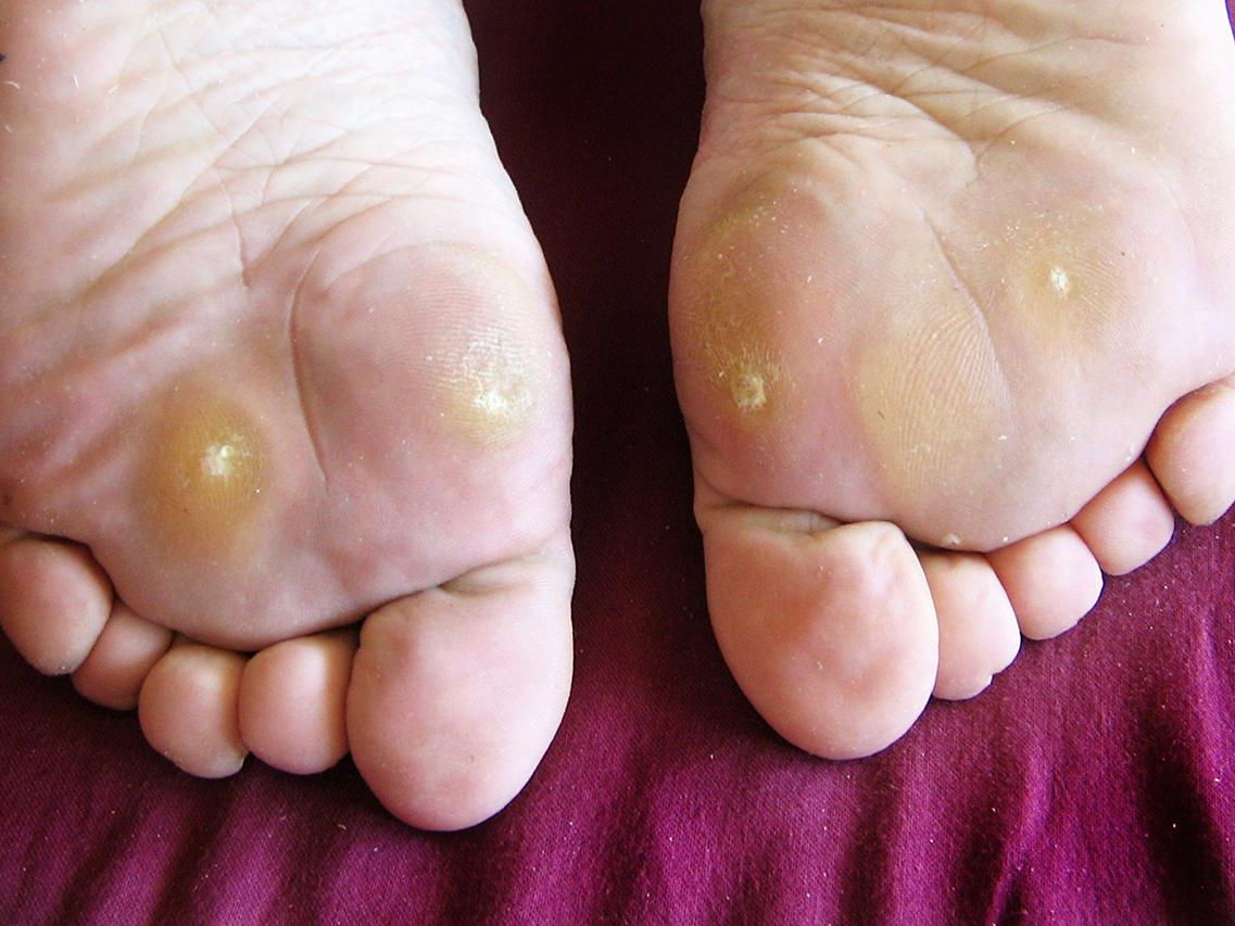 warts foot causes