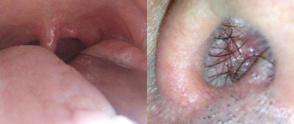 papilloma bocca