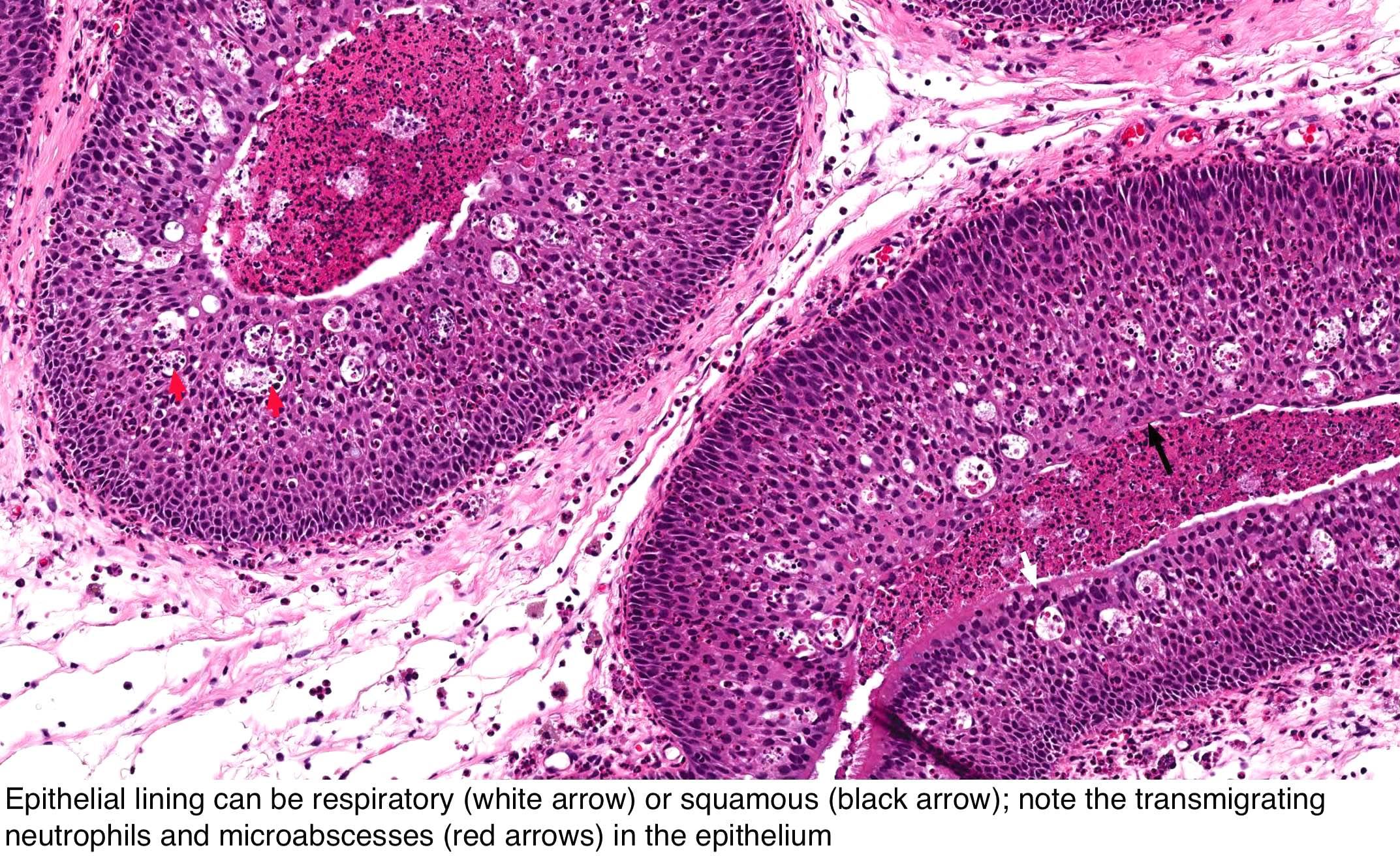 squamous papilloma histology skin