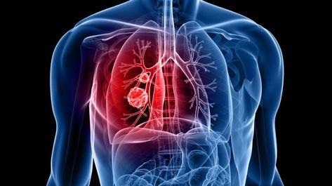 simptomele diphildobothriasis la om și tratament