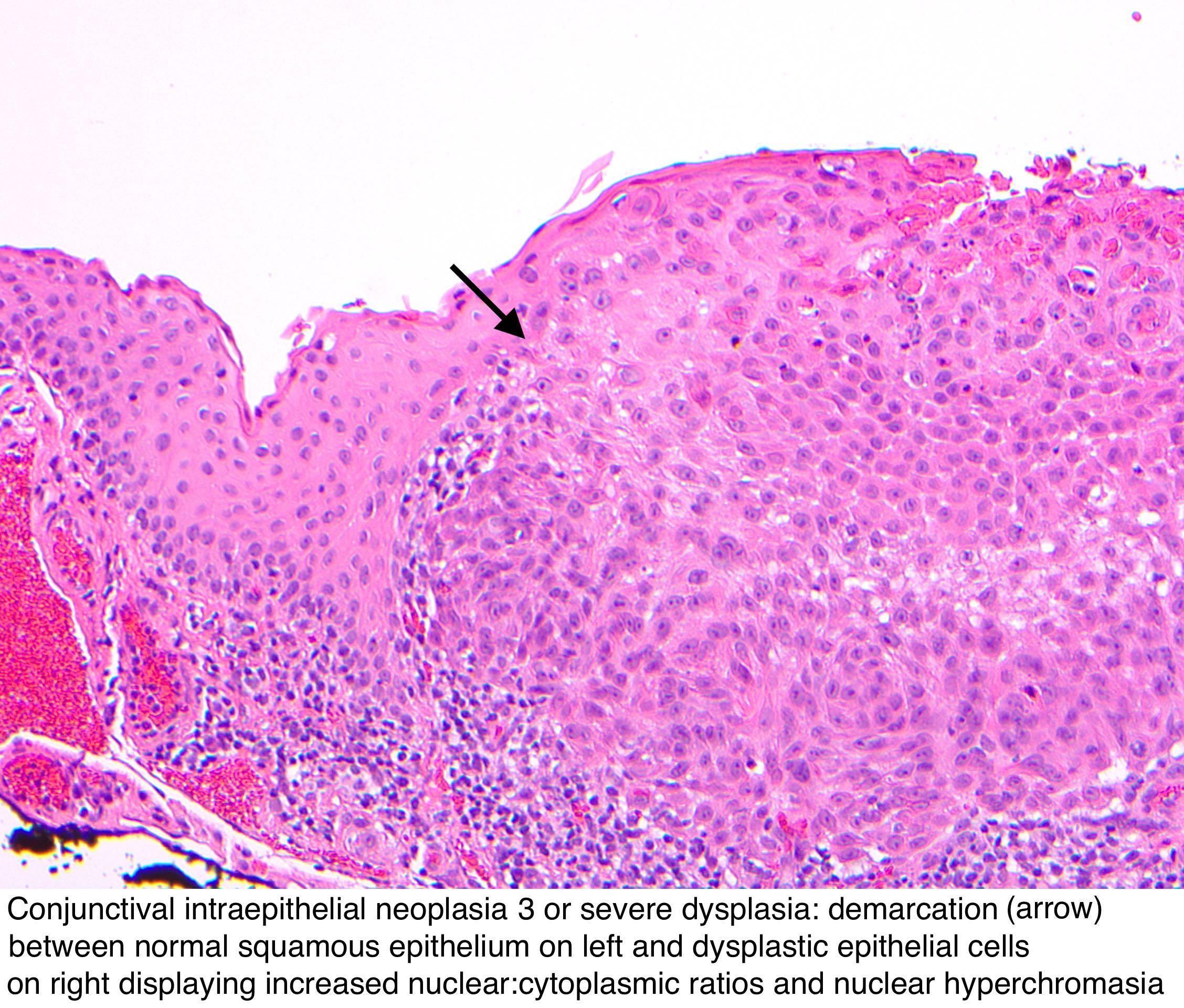Conjunctival papilloma pathology, Case Report