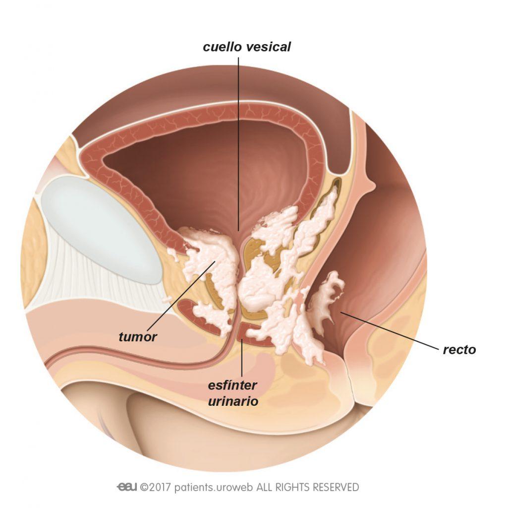 Cancer cai urinare, Cancer de vezică: simptome care ar trebui să ne aducă la doctor