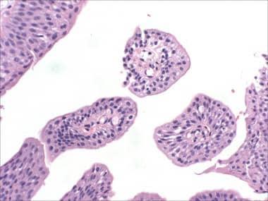 Urothelial papilloma follow up - transroute.ro