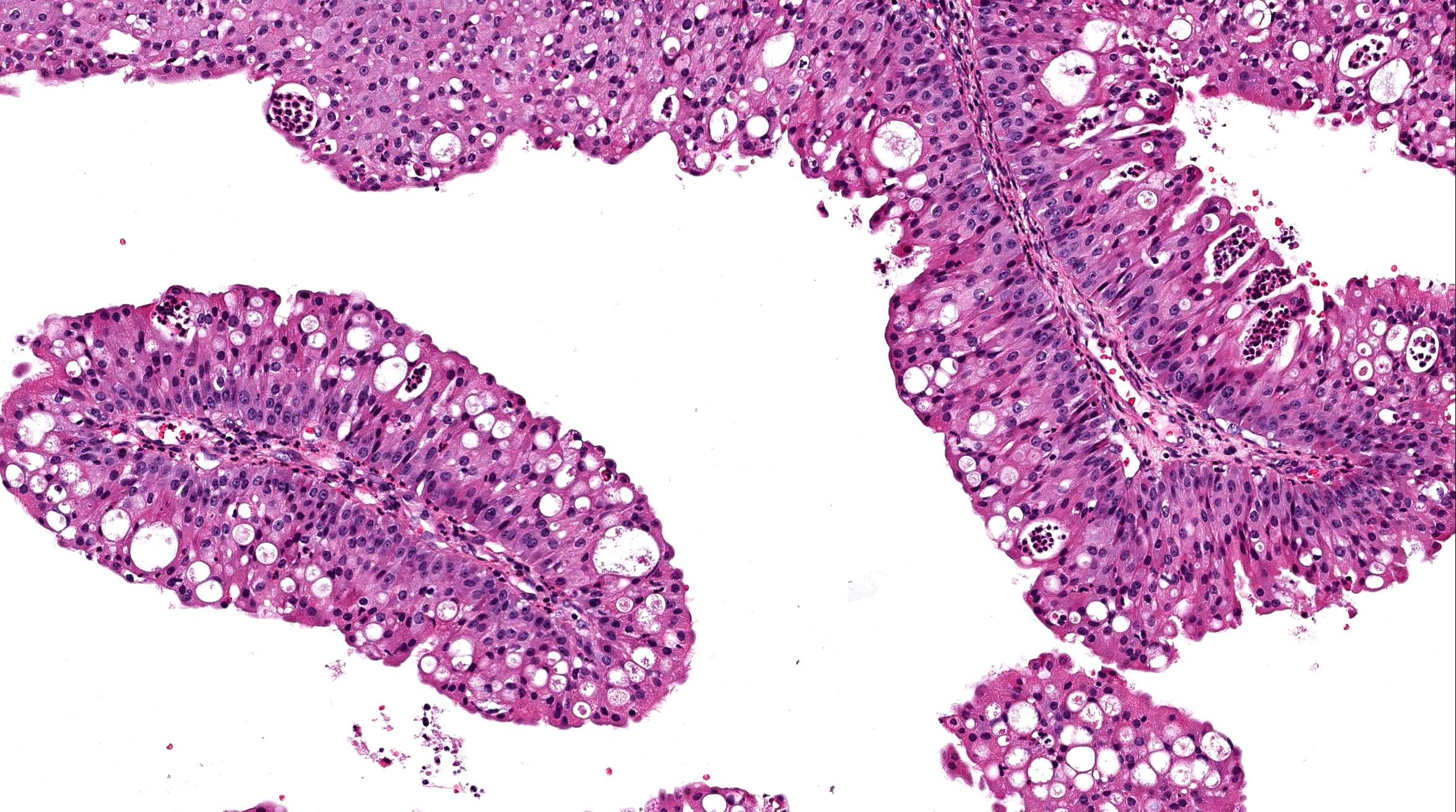 Nasal papilloma pathology.