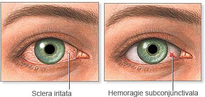 tratament pentru ochi pentru paraziți vierme medicament pentru copii suspensie