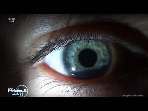 paraziți în ochi  cum să scapi