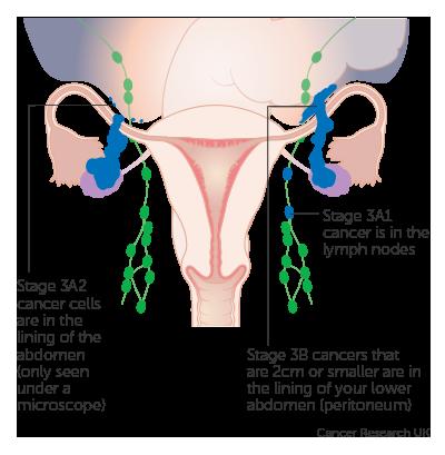 Cancerul ovarian, ucigasul tacut. Nu ignora aceste semne