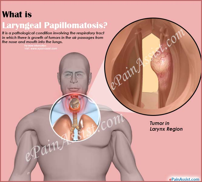 symptoms of respiratory papillomatosis disease